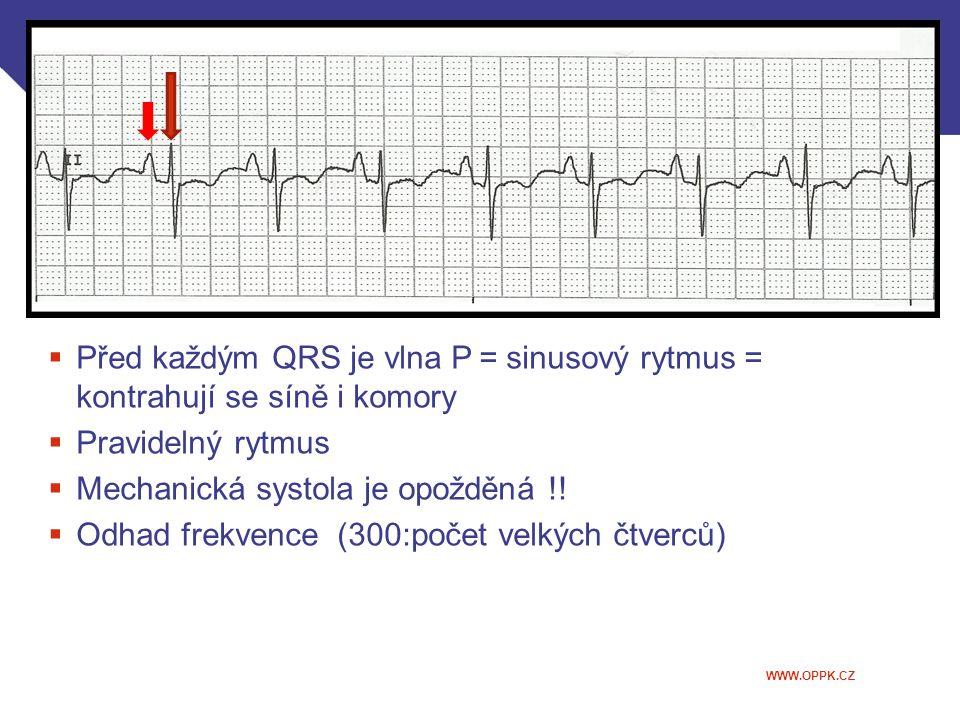 WWW.OPPK.CZ  Před každým QRS je vlna P = sinusový rytmus = kontrahují se síně i komory  Pravidelný rytmus  Mechanická systola je opožděná !!  Odha