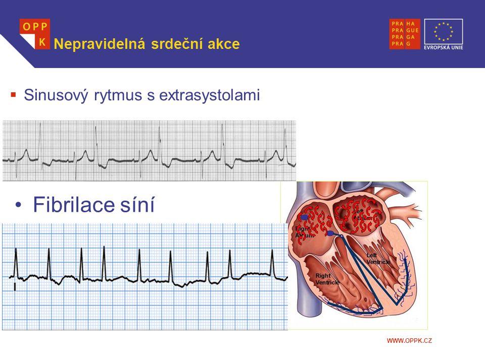 WWW.OPPK.CZ Nepravidelná srdeční akce  Sinusový rytmus s extrasystolami Fibrilace síní