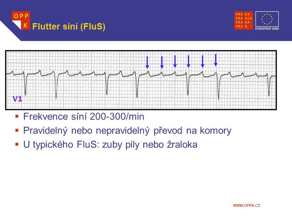WWW.OPPK.CZ Flutter síní (FluS)  Frekvence síní 200-300/min  Pravidelný nebo nepravidelný převod na komory  U typického FluS: zuby pily nebo žralok