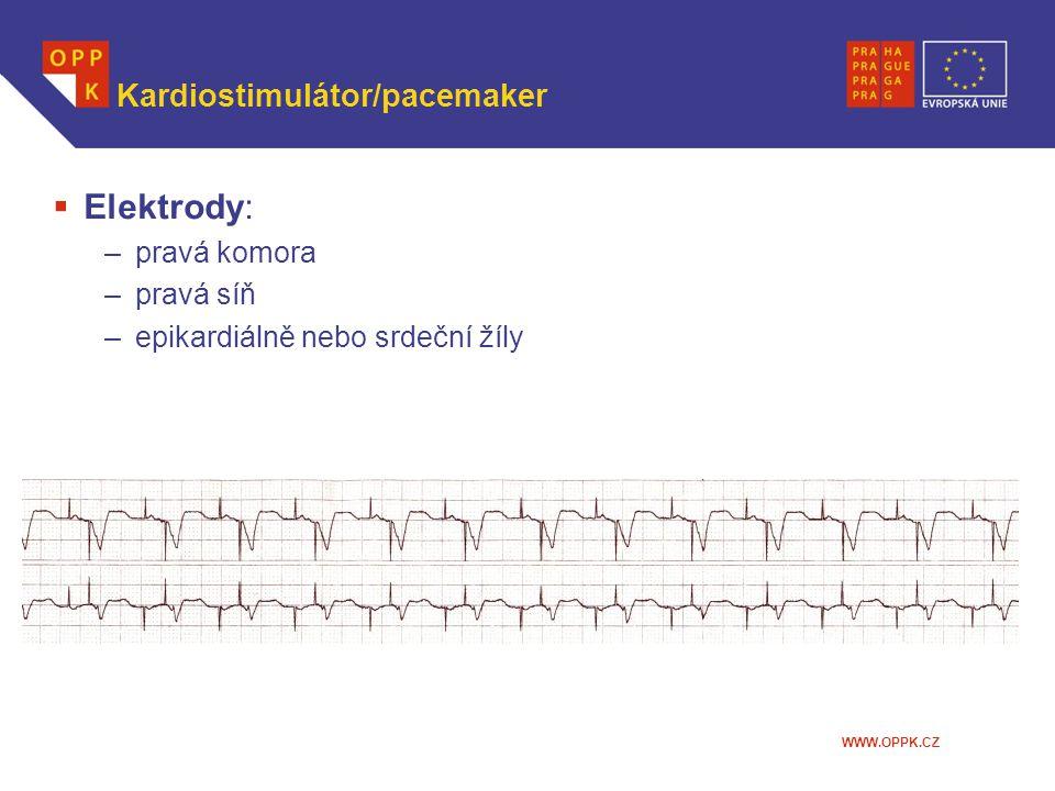 WWW.OPPK.CZ Kardiostimulátor/pacemaker  Elektrody: –pravá komora –pravá síň –epikardiálně nebo srdeční žíly