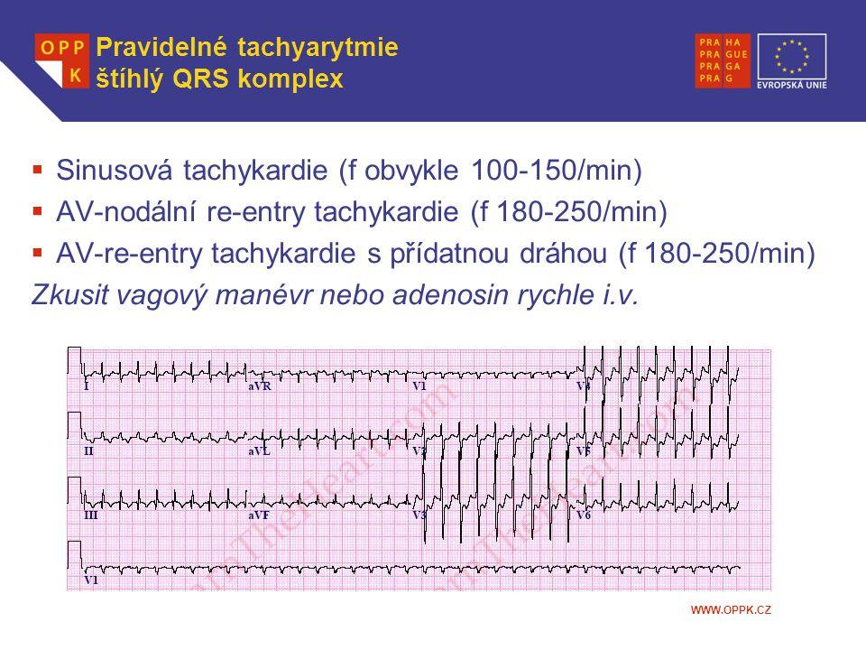 WWW.OPPK.CZ Pravidelné tachyarytmie štíhlý QRS komplex  Sinusová tachykardie (f obvykle 100-150/min)  AV-nodální re-entry tachykardie (f 180-250/min