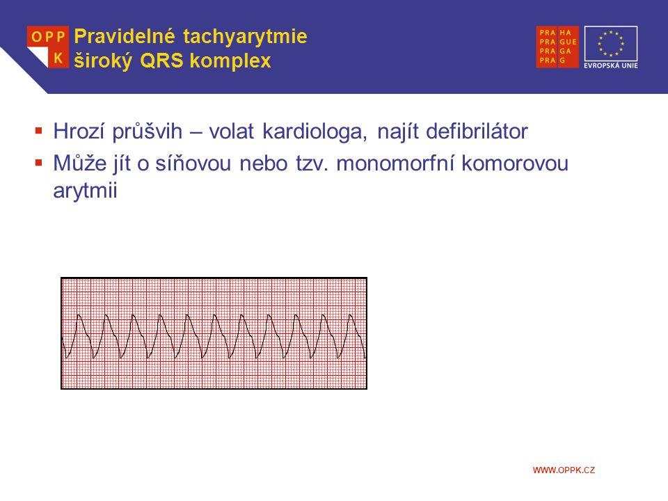 WWW.OPPK.CZ  Hrozí průšvih – volat kardiologa, najít defibrilátor  Může jít o síňovou nebo tzv. monomorfní komorovou arytmii Pravidelné tachyarytmie
