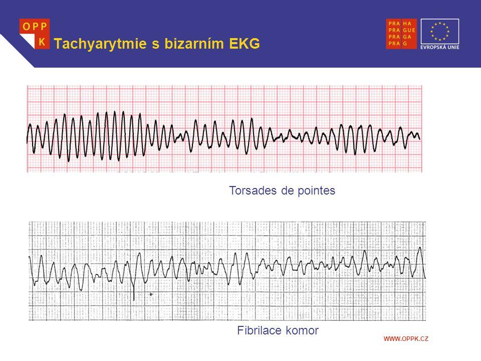 WWW.OPPK.CZ Tachyarytmie s bizarním EKG Torsades de pointes Fibrilace komor