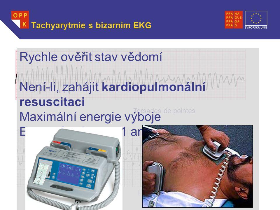 WWW.OPPK.CZ Tachyarytmie s bizarním EKG Torsades de pointes Fibrilace komor Rychle ověřit stav vědomí Není-li, zahájit kardiopulmonální resuscitaci Ma