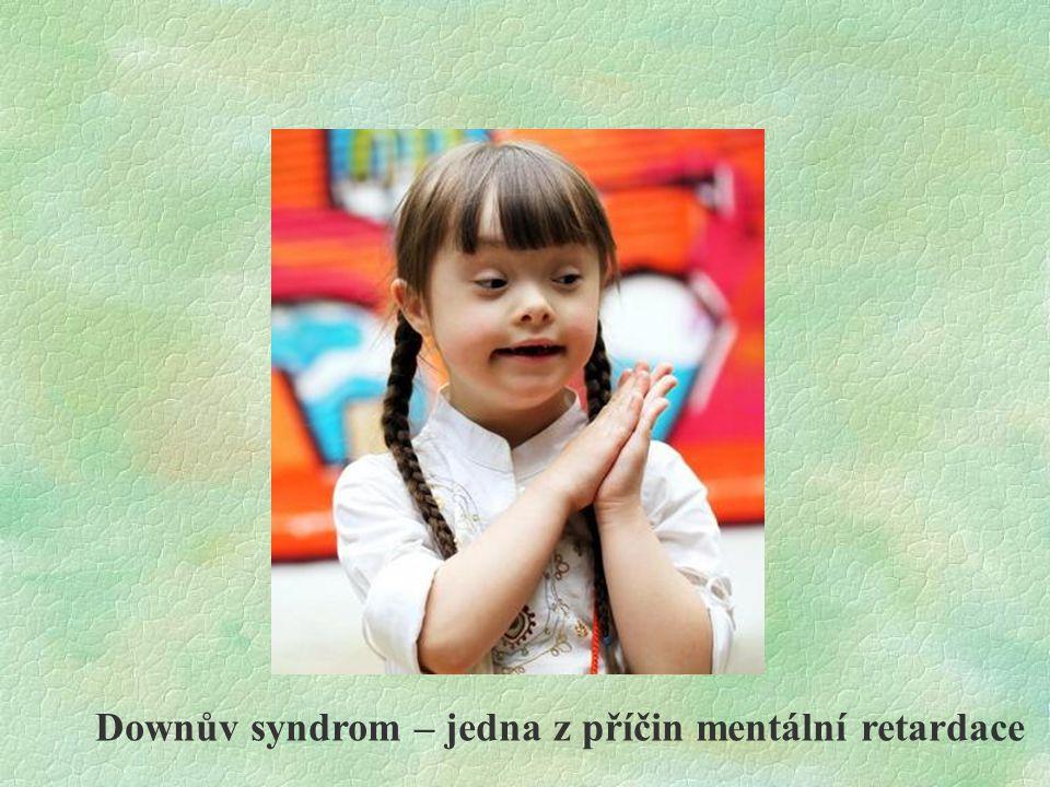 Downův syndrom – jedna z příčin mentální retardace
