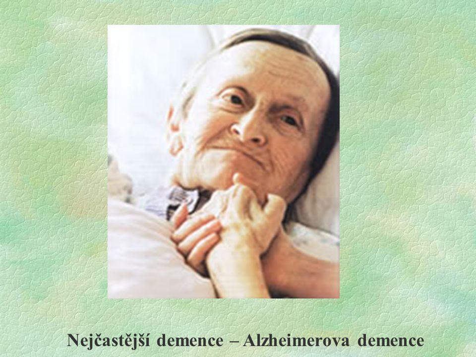Nejčastější demence – Alzheimerova demence