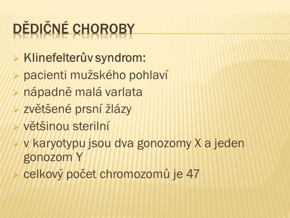  Klinefelterův syndrom:  pacienti mužského pohlaví  nápadně malá varlata  zvětšené prsní žlázy  většinou sterilní  v karyotypu jsou dva gonozomy X a jeden gonozom Y  celkový počet chromozomů je 47