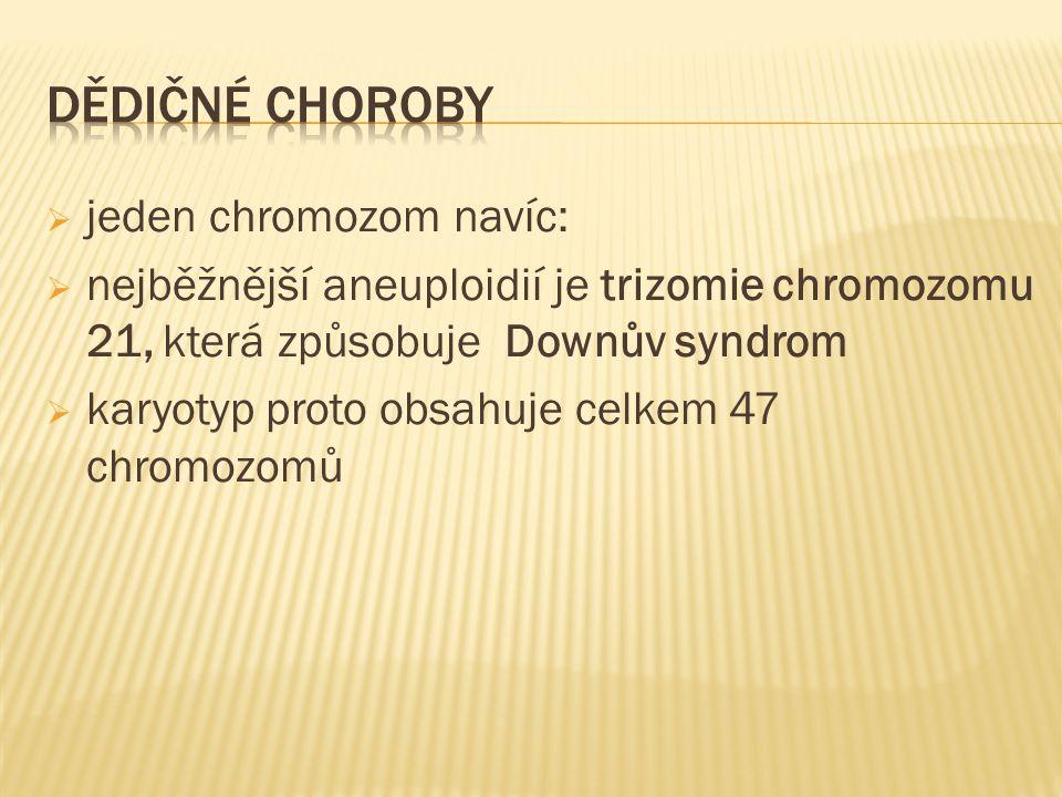  jeden chromozom navíc:  nejběžnější aneuploidií je trizomie chromozomu 21, která způsobuje Downův syndrom  karyotyp proto obsahuje celkem 47 chrom