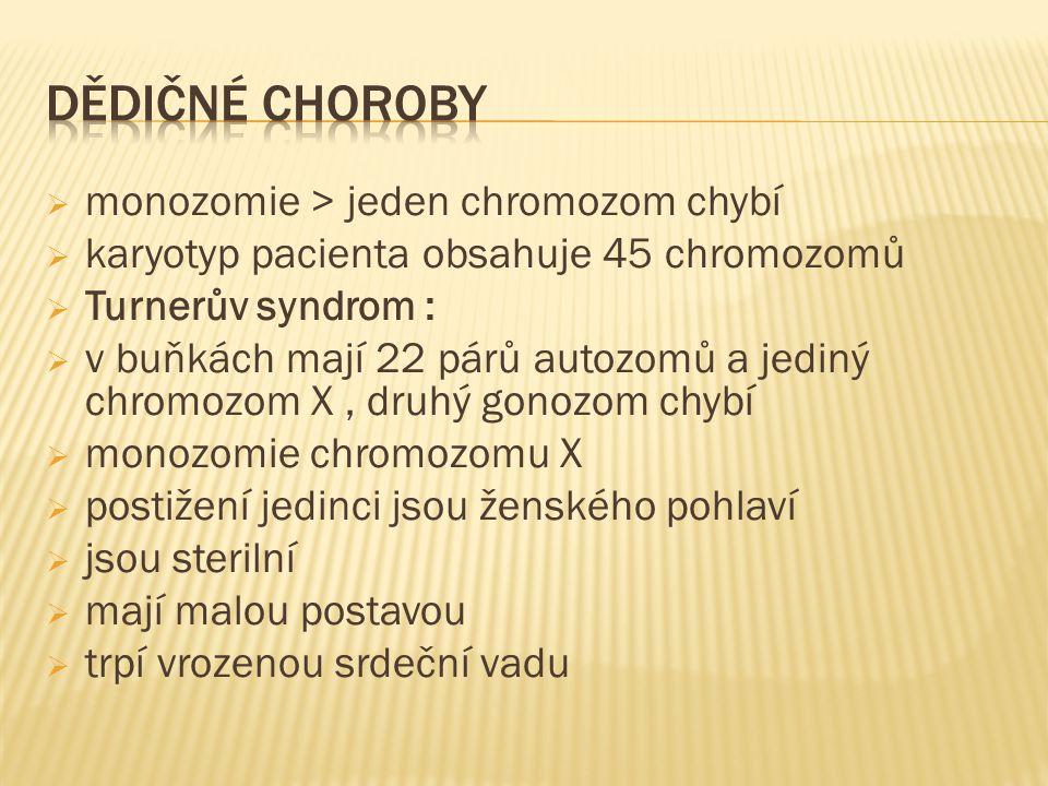  monozomie > jeden chromozom chybí  karyotyp pacienta obsahuje 45 chromozomů  Turnerův syndrom :  v buňkách mají 22 párů autozomů a jediný chromozom X, druhý gonozom chybí  monozomie chromozomu X  postižení jedinci jsou ženského pohlaví  jsou sterilní  mají malou postavou  trpí vrozenou srdeční vadu