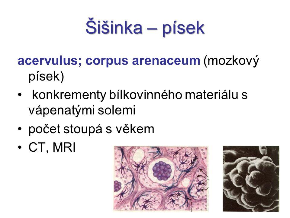 Šišinka – písek acervulus; corpus arenaceum (mozkový písek) konkrementy bílkovinného materiálu s vápenatými solemi počet stoupá s věkem CT, MRI