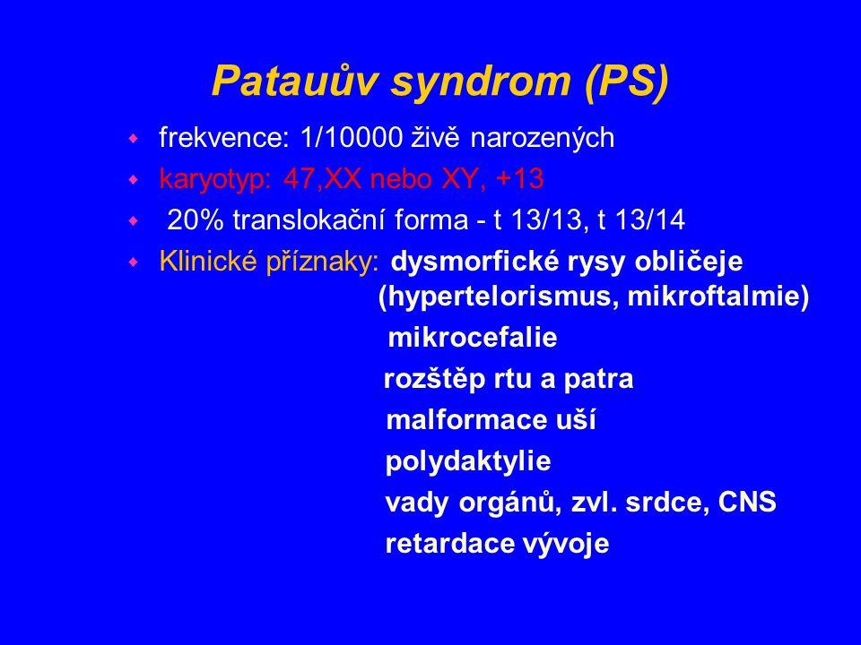 Patauův syndrom (PS) w frekvence: 1/10000 živě narozených w karyotyp: 47,XX nebo XY, +13 w 20% translokační forma - t 13/13, t 13/14 w Klinické přízna