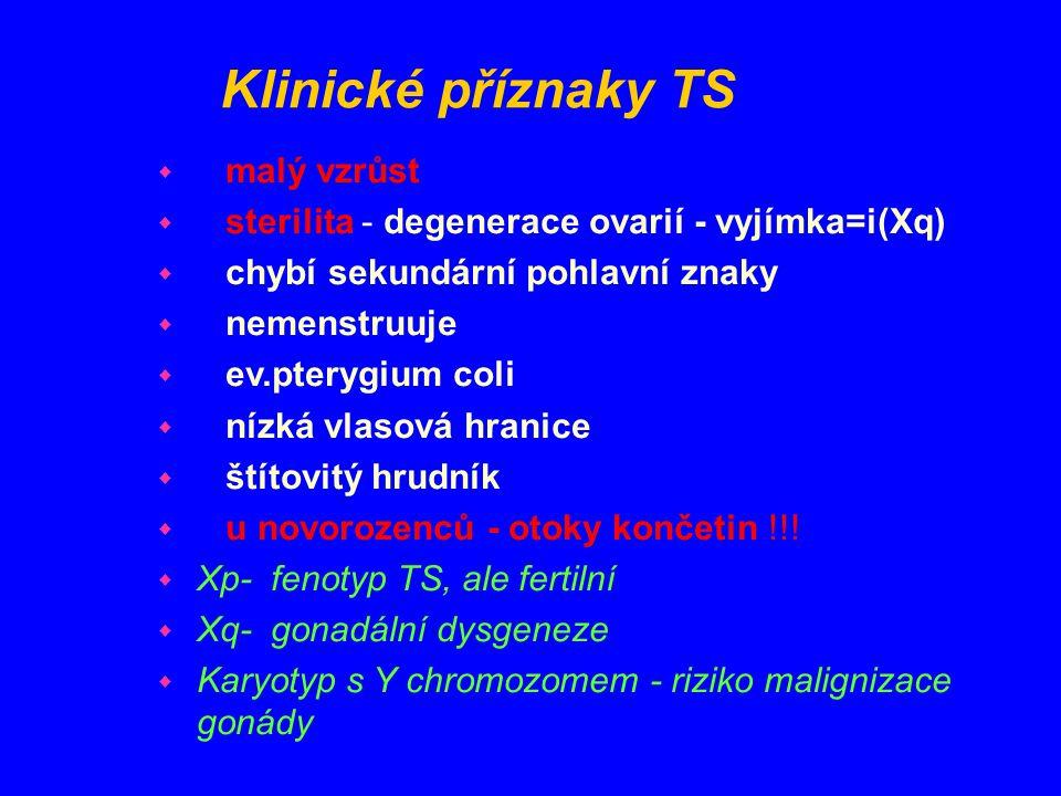 Klinické příznaky TS w malý vzrůst w sterilita - degenerace ovarií - vyjímka=i(Xq) w chybí sekundární pohlavní znaky w nemenstruuje w ev.pterygium col