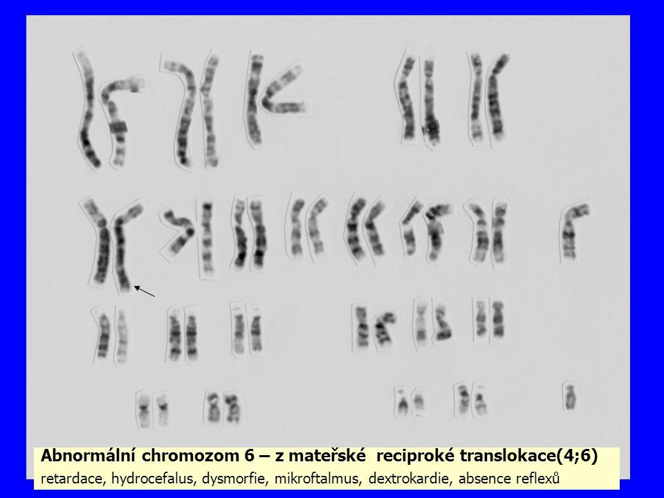 Abnormální chromozom 6 – z mateřské reciproké translokace(4;6) retardace, hydrocefalus, dysmorfie, mikroftalmus, dextrokardie, absence reflexů