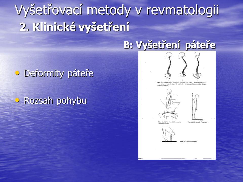 Vyšetřovací metody v revmatologii 2. Klinické vyšetření B: Vyšetření páteře Deformity páteře Deformity páteře Rozsah pohybu Rozsah pohybu