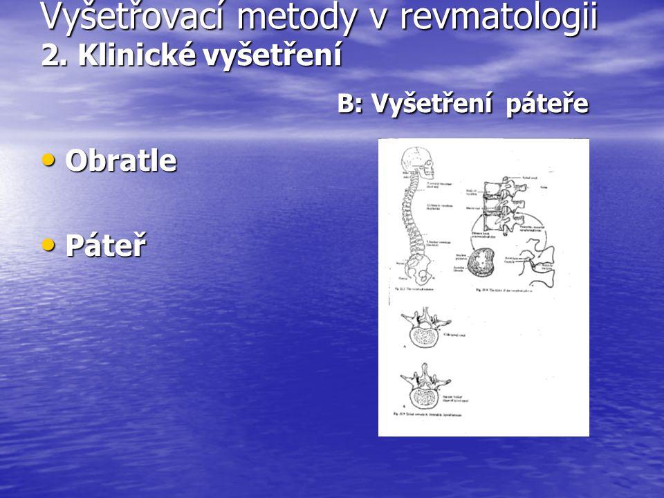Vyšetřovací metody v revmatologii 2. Klinické vyšetření B: Vyšetření páteře Obratle Obratle Páteř Páteř