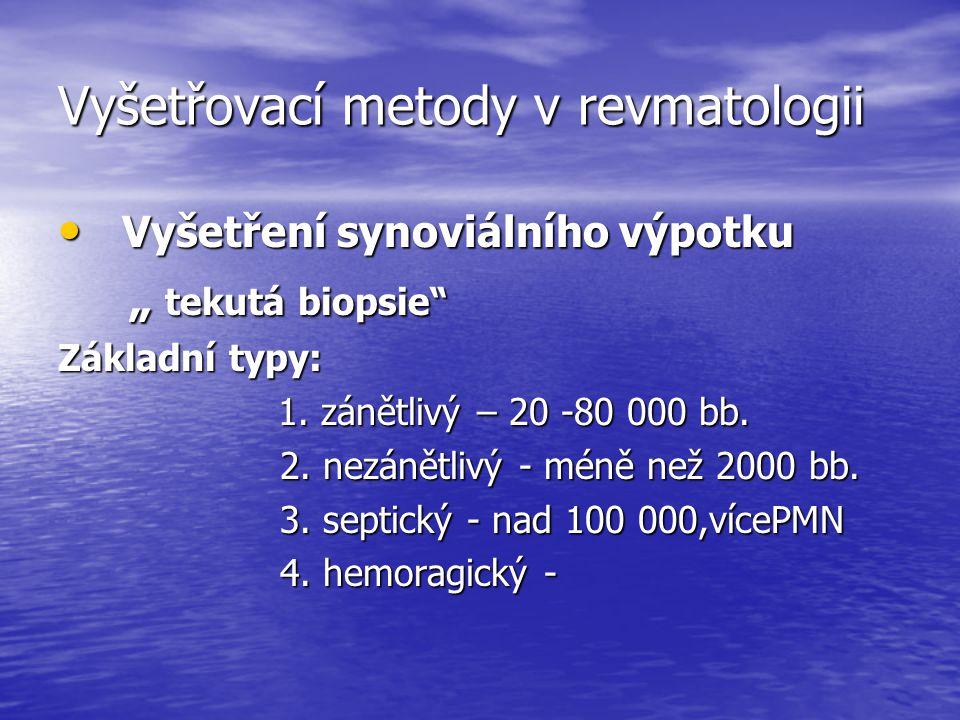 """Vyšetřovací metody v revmatologii Vyšetření synoviálního výpotku Vyšetření synoviálního výpotku """" tekutá biopsie"""" """" tekutá biopsie"""" Základní typy: 1."""