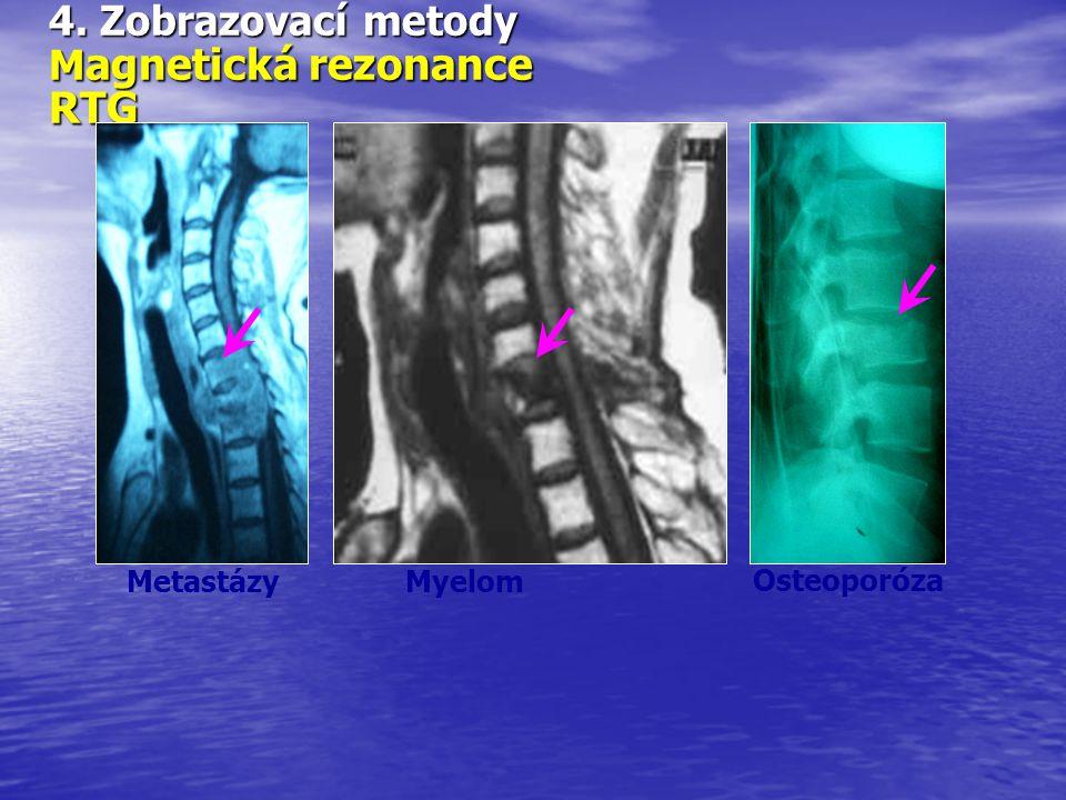 4. Zobrazovací metody M agnetická rezonance RTG Myelom Metastázy Osteoporóza