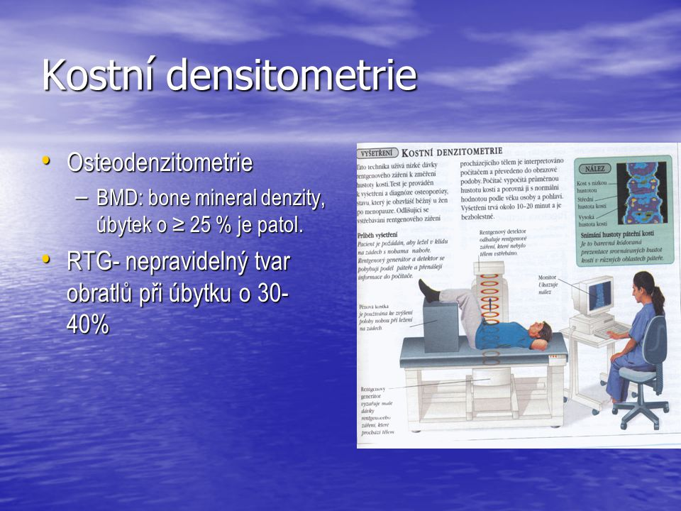 Kostní densitometrie Osteodenzitometrie Osteodenzitometrie – BMD: bone mineral denzity, úbytek o ≥ 25 % je patol. RTG- nepravidelný tvar obratlů při ú