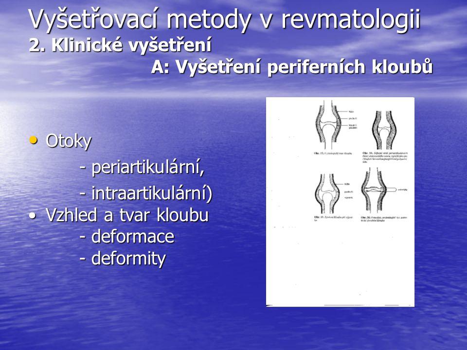 Vyšetřovací metody v revmatologii 2. Klinické vyšetření A: Vyšetření periferních kloubů Otoky Otoky - periartikulární, - periartikulární, - intraartik