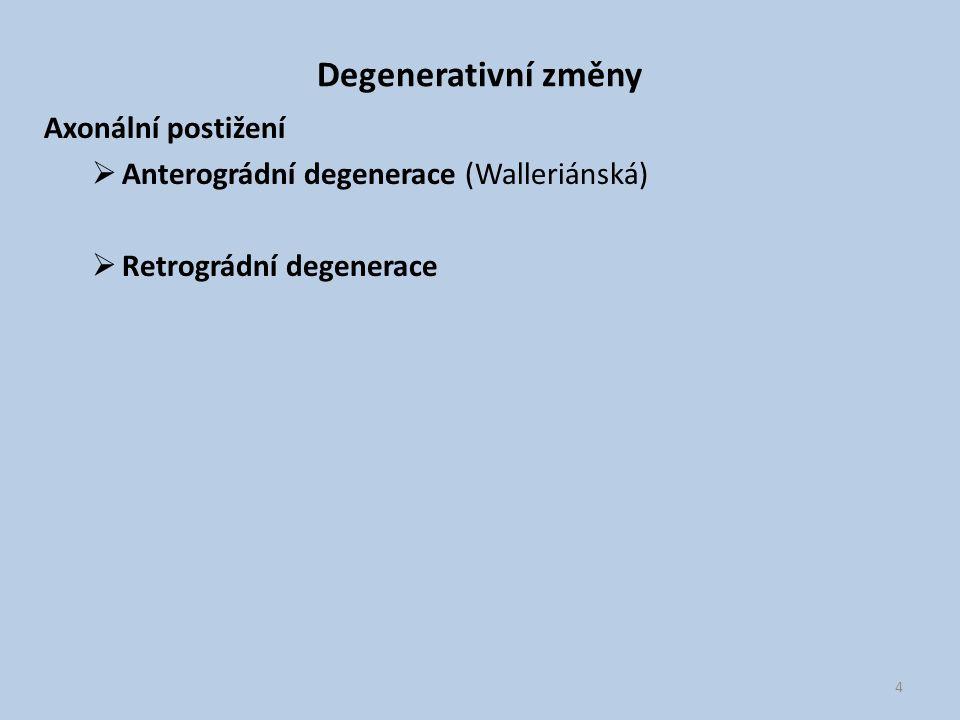 Degenerativní změny Axonální postižení  Anterográdní degenerace (Walleriánská)  Retrográdní degenerace 4