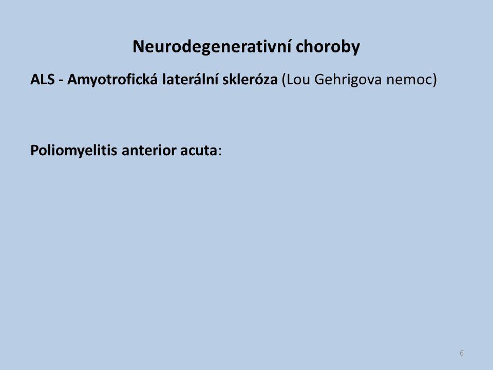 Neurodegenerativní choroby ALS - Amyotrofická laterální skleróza (Lou Gehrigova nemoc) Poliomyelitis anterior acuta: 6