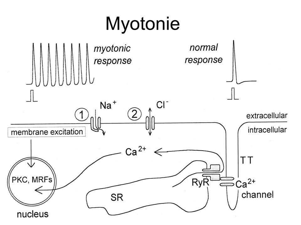 Myotonie