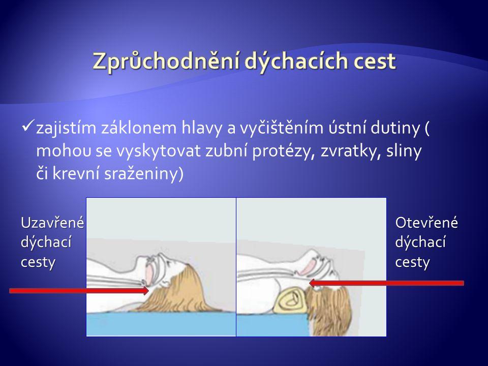 První krok je vyčištění ústní dutiny – včetně tekuté části (zvratky) Druhý krok je záklon hlavy
