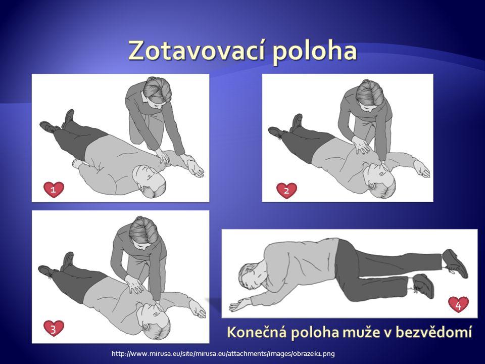 pokud není zachránce proškolen v provádění ventilace ( dýchání z plic do plic, použitím pomůcek) provádí pouze nepřerušovanou masáž pokud je zachránce