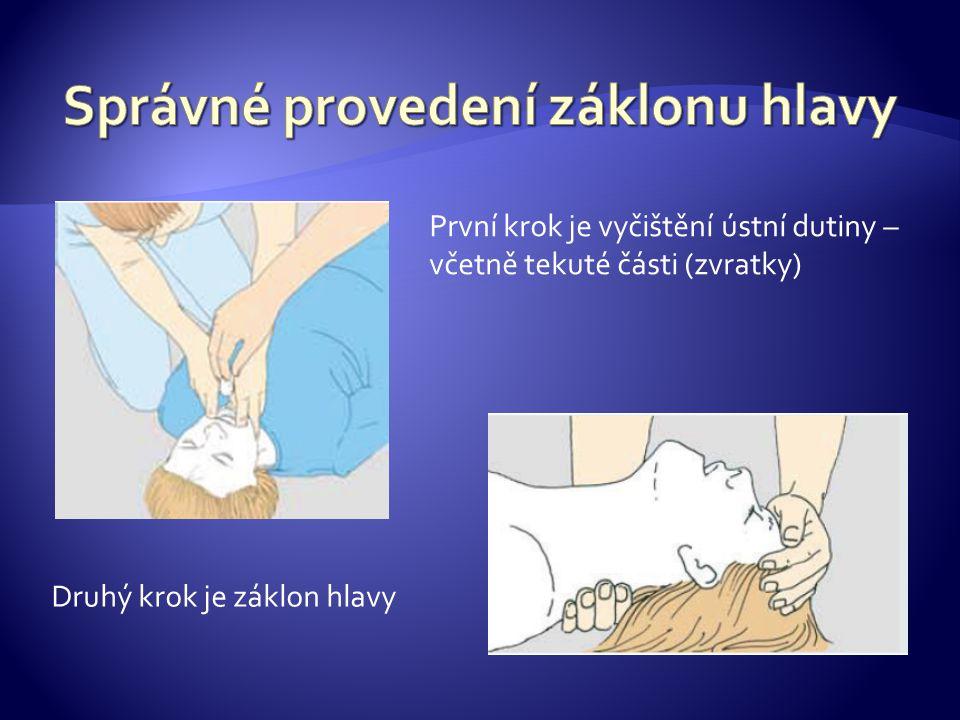 kontrola dechu: poslechem - ucho zachránce k nosu a puse postiženého, pohmatem - ruce na hrudník a nadbřišek, pohledem - zvedá se hrudník