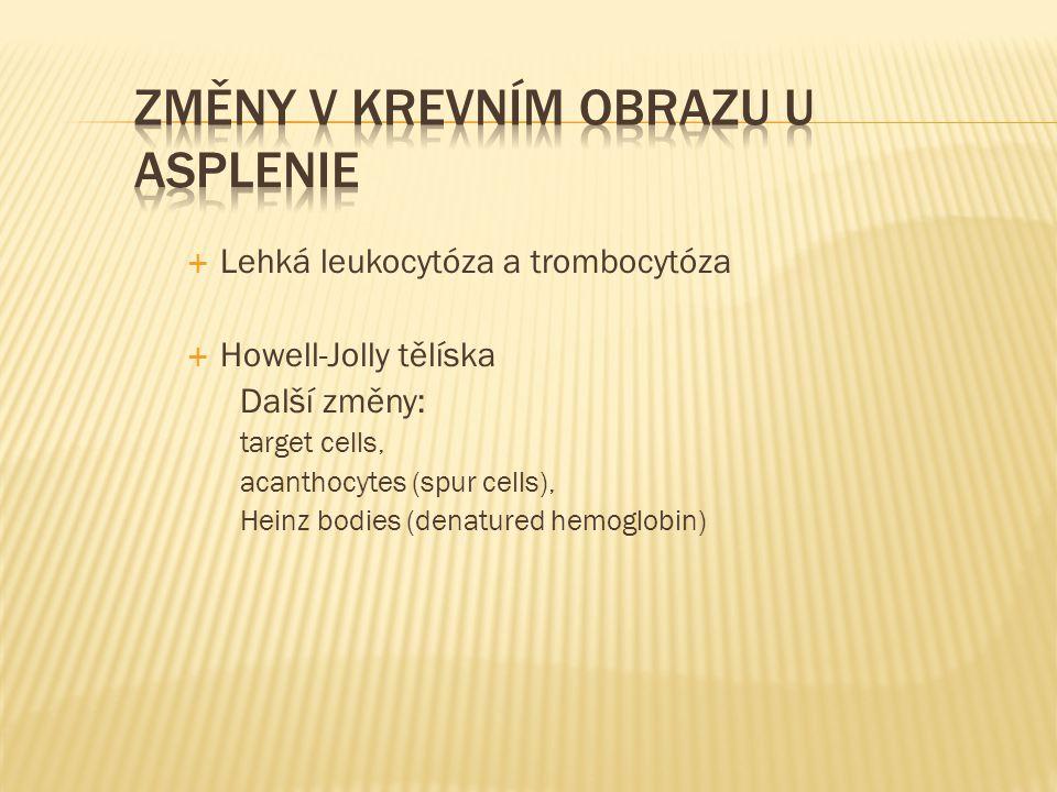  Lehká leukocytóza a trombocytóza  Howell-Jolly tělíska Další změny: target cells, acanthocytes (spur cells), Heinz bodies (denatured hemoglobin)