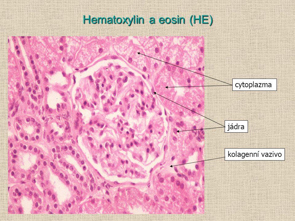 Hematoxylin a eosin (HE) cytoplazma jádra kolagenní vazivo