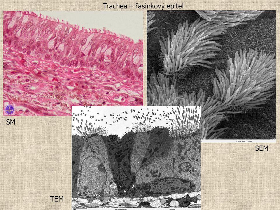 SM SEM TEM Trachea – řasinkový epitel