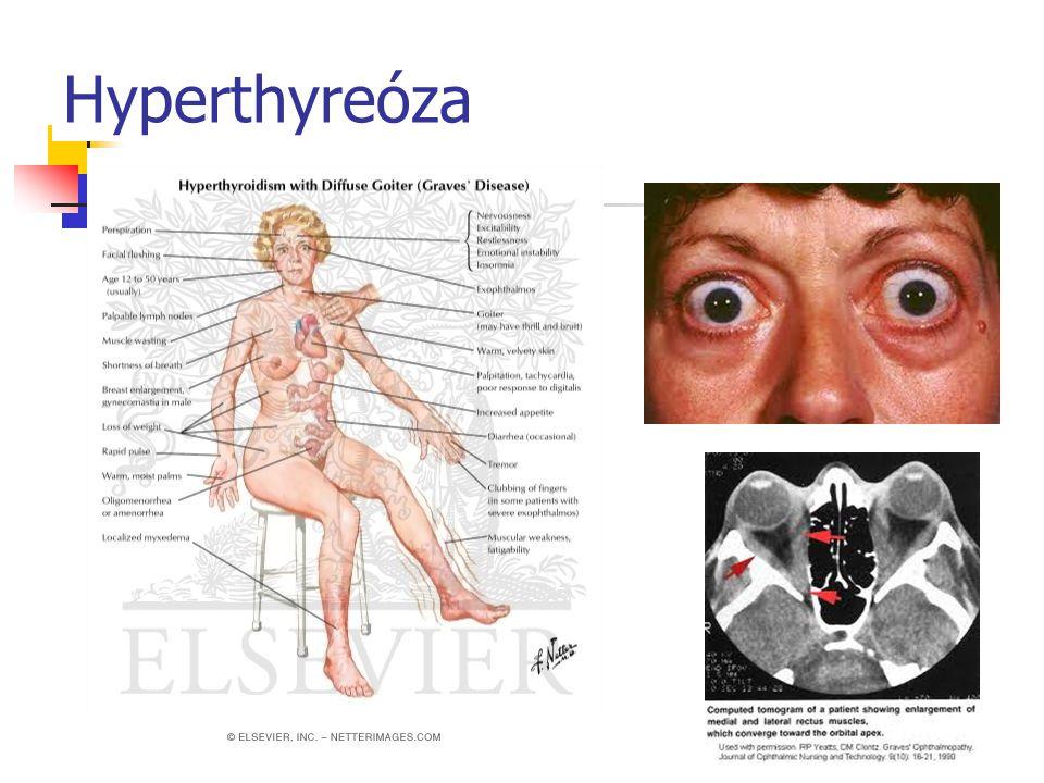 Hyperthyreóza