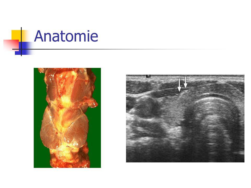 Příčiny hyperfunkce: AI – hyperfunkční fáze chronické lymfocytární thyroiditidy - GB toxikóza Toxický adenom Polynodózní toxická struma Subakutní de Quervainova thyroiditida Poporodní thyroiditida Jodem indukovaná Iatrogenní, factitia…