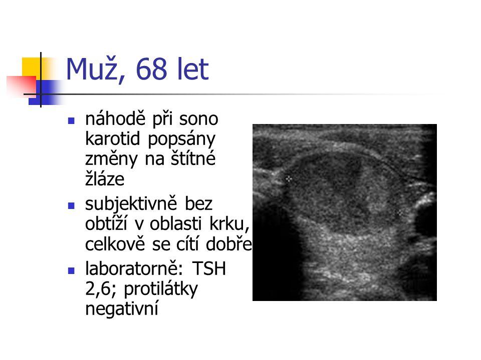 Muž, 68 let náhodě při sono karotid popsány změny na štítné žláze subjektivně bez obtíží v oblasti krku, celkově se cítí dobře laboratorně: TSH 2,6; p