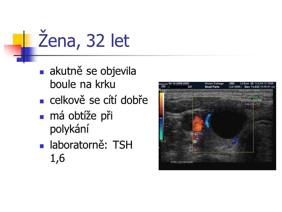 Žena, 32 let akutně se objevila boule na krku celkově se cítí dobře má obtíže při polykání laboratorně: TSH 1,6