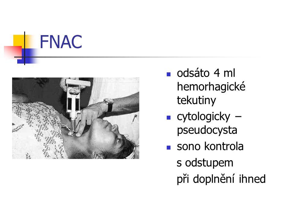 FNAC odsáto 4 ml hemorhagické tekutiny cytologicky – pseudocysta sono kontrola s odstupem při doplnění ihned