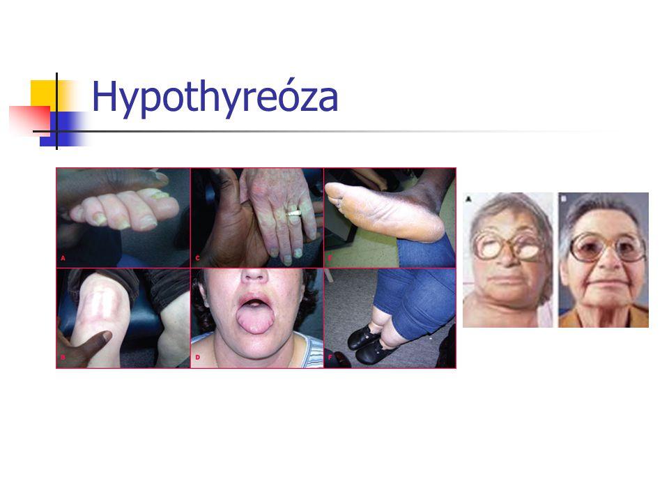 Příčiny hypofunkce AI záněty nedostatek jodu RT Chirurgie