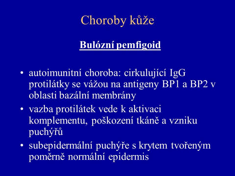 Choroby kůže Bulózní pemfigoid autoimunitní choroba: cirkulující IgG protilátky se vážou na antigeny BP1 a BP2 v oblasti bazální membrány vazba protilátek vede k aktivaci komplementu, poškození tkáně a vzniku puchýřů subepidermální puchýře s krytem tvořeným poměrně normální epidermis