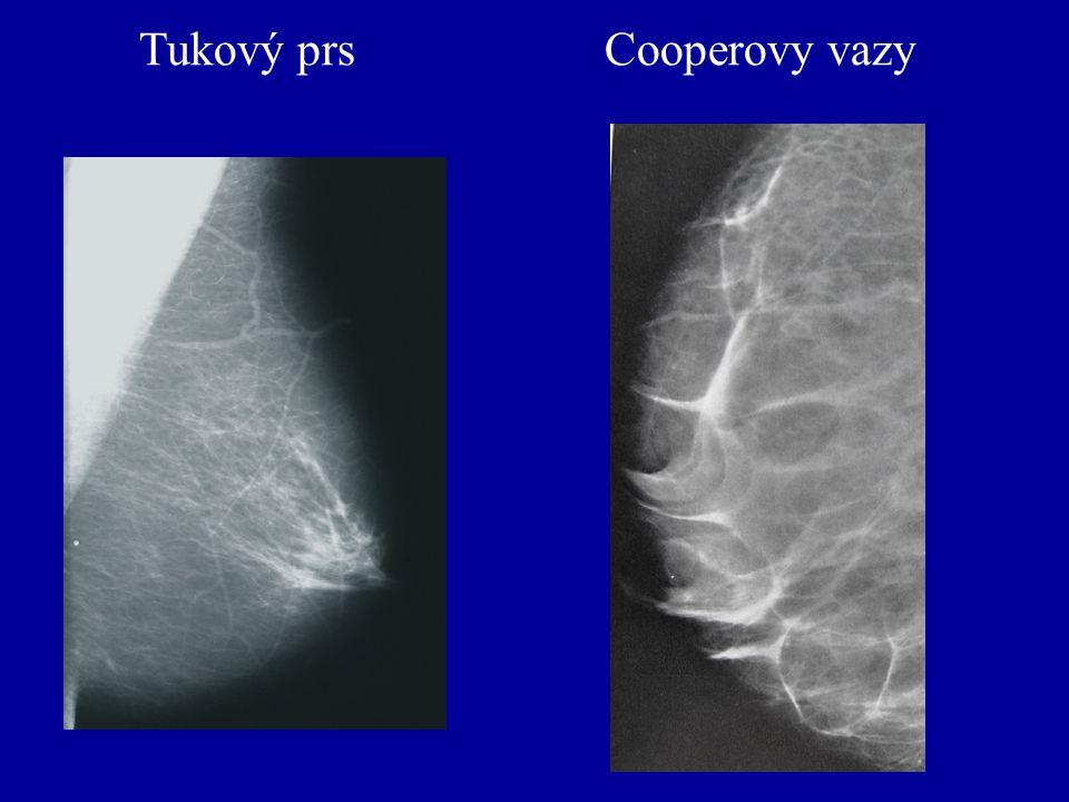Tukový prs Cooperovy vazy