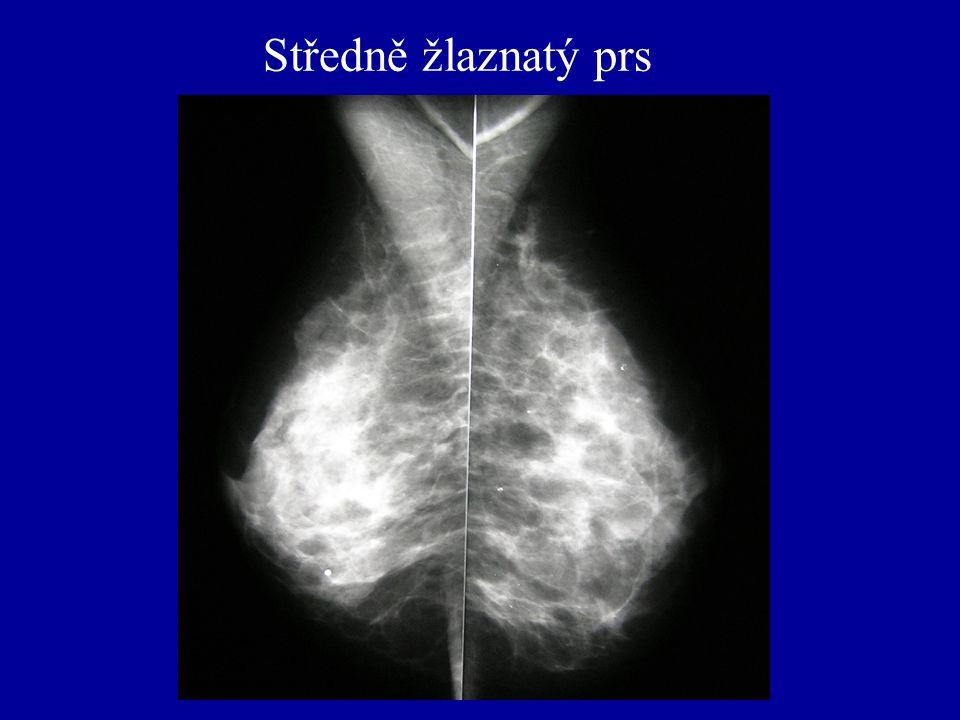 Středně žlaznatý prs