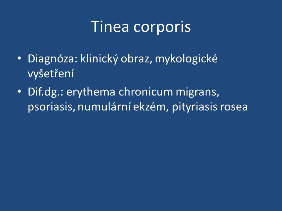Tinea corporis Diagnóza: klinický obraz, mykologické vyšetření Dif.dg.: erythema chronicum migrans, psoriasis, numulární ekzém, pityriasis rosea