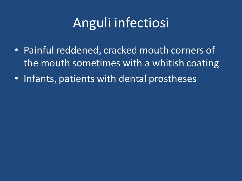 Anguli infectiosi Painful reddened, cracked mouth corners of the mouth sometimes with a whitish coating Infants, patients with dental prostheses