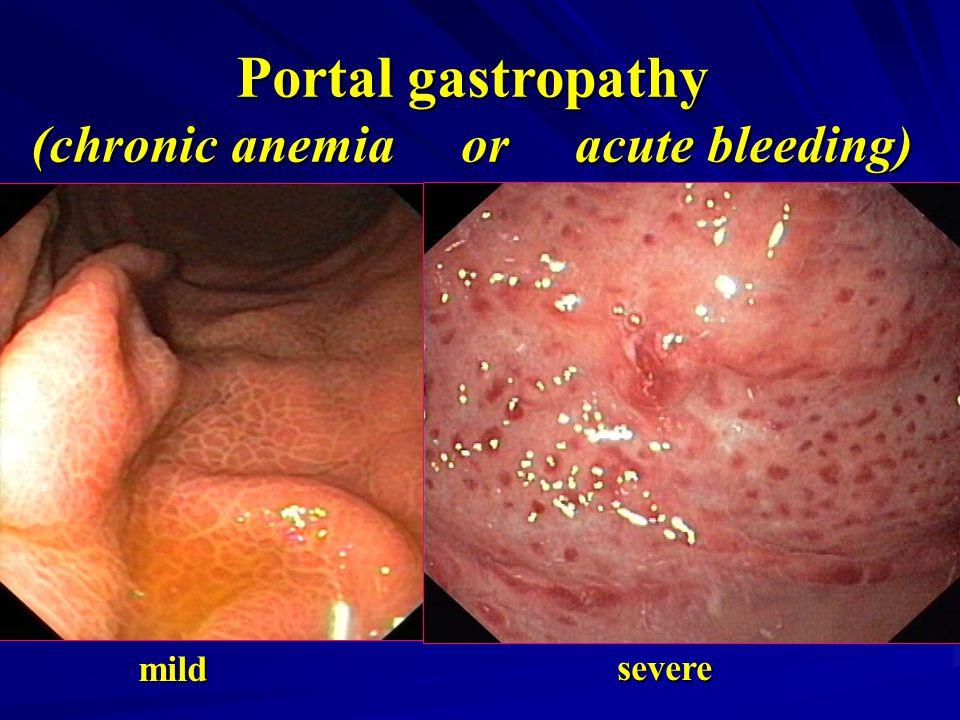 Portal gastropathy (chronic anemia or acute bleeding) mild severe