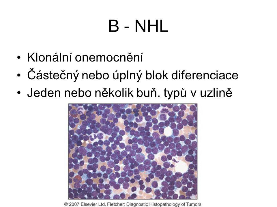 B - NHL Klonální onemocnění Částečný nebo úplný blok diferenciace Jeden nebo několik buň. typů v uzlině