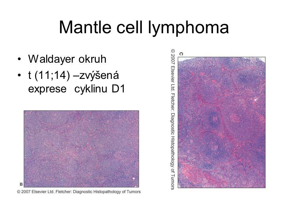 Mantle cell lymphoma Waldayer okruh t (11;14) –zvýšená exprese cyklinu D1
