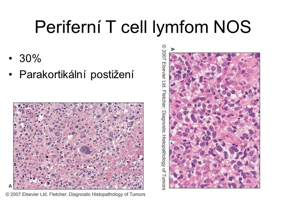 Periferní T cell lymfom NOS 30% Parakortikální postižení