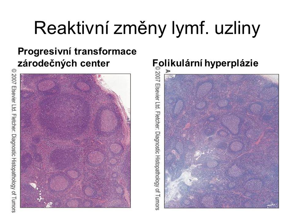 Reaktivní změny lymf. uzliny Progresivní transformace zárodečných centerFolikulární hyperplázie