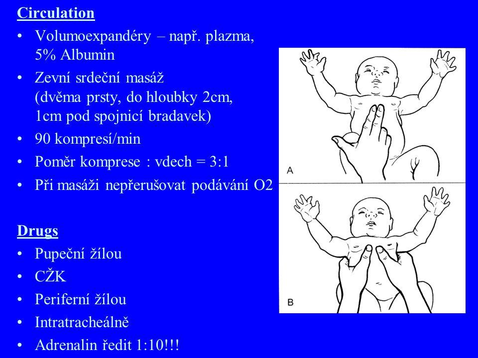 RESUSCITACE NOVOROZENCE AIRWAY Odsátí (plodová voda, smolka, krev) Nejprve odsávat Dú a nosohltan, teprve pak nos! Nezaklánět hlavu BREATHING Taktilní