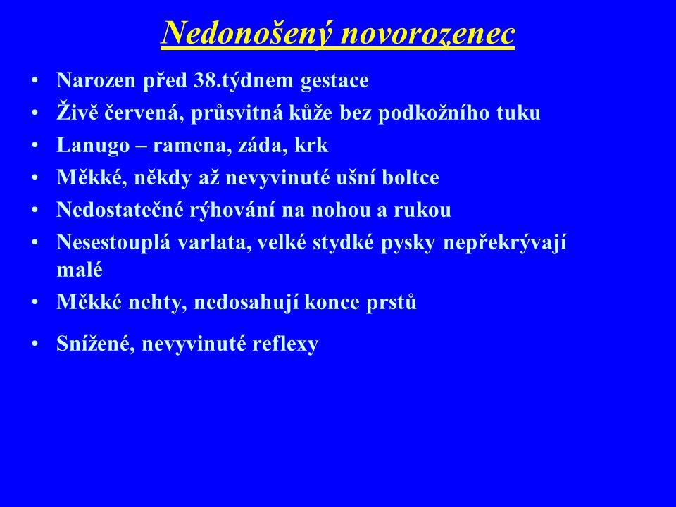 Klasifikace dle délky těhotenství Narozené před termínem (nedonošené) Narozené v termínu (donošené) Narozené po termínu (přenošené)